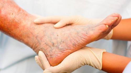 tratamentul articulațiilor diabetice unde să tratezi articulațiile din picioare