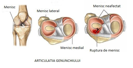 Rupturile de menisc – diagnostic și tratament