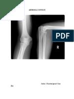 Cum se manifestă artrita articulației cotului