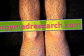 Dureri genunchi cu fluid. Einzigartige Naturprodukte gegen Knieschmerzen | HillVital