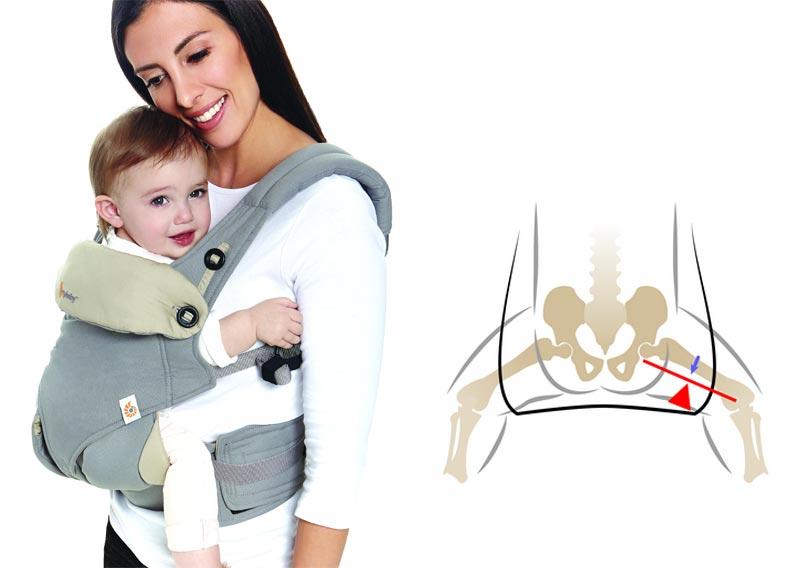 cumpărați dispozitive pentru tratamentul artrozei tratament coxartroza articulației șoldului