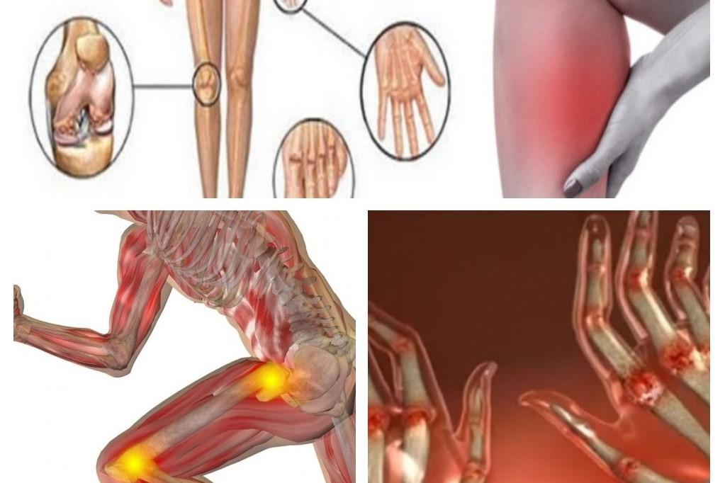 Artrita articulației piciorului