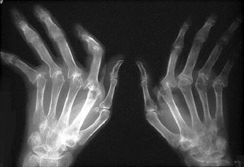 cum să tratezi artrita în picioare