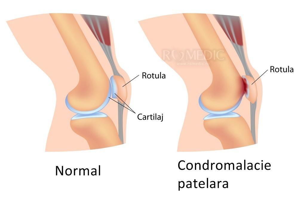 Artroza tratamentului articulației genunchiului este posibilă încălzirea - championsforlife.ro