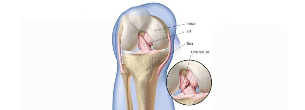 Recuperare Ligamente Genunchi - Simptome de artrită reumatoidă în mâini și încheieturi