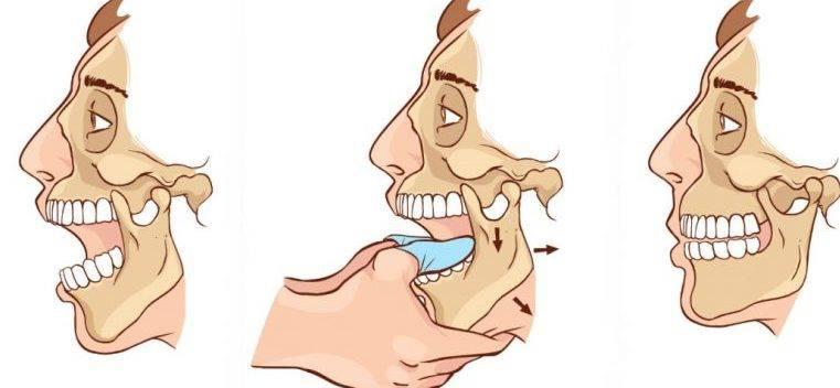 Dizlocarea articulatiei temporo-mandibulare