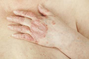 durere la gleznă și articulații artroza de gradul 1 al tratamentului articulației încheieturii