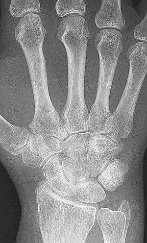 Cum să tratezi artrita carpică - championsforlife.ro