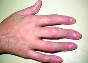 ameliorați unguentul pentru dureri articulare ceea ce face rănirea articulațiilor cotului mâinilor