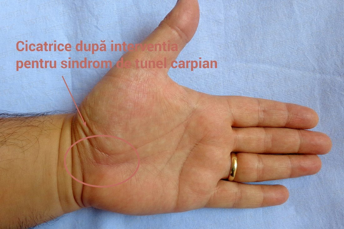 Tratamentul sindromului tunelului de umăr durere ascuțită în articulația mâinii