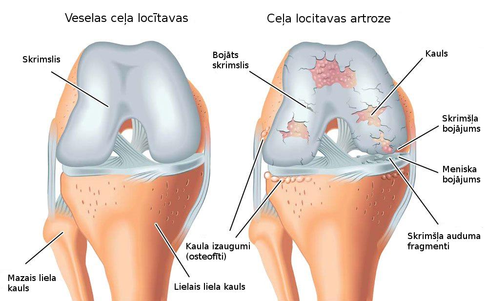 artroso articulație perie artroză