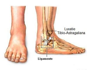 diagnosticul leziunii ligamentului gleznei