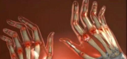 durere și mâncărime în articulațiile degetelor