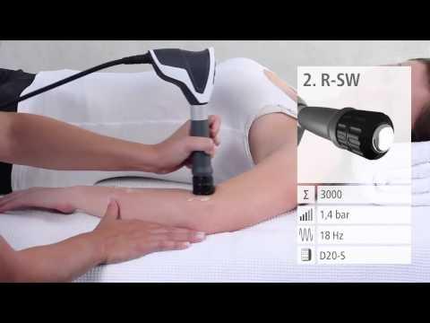 Tratamentul articulațiilor cotului ce unguent, Unguent pentru artrita articulațiilor cotului