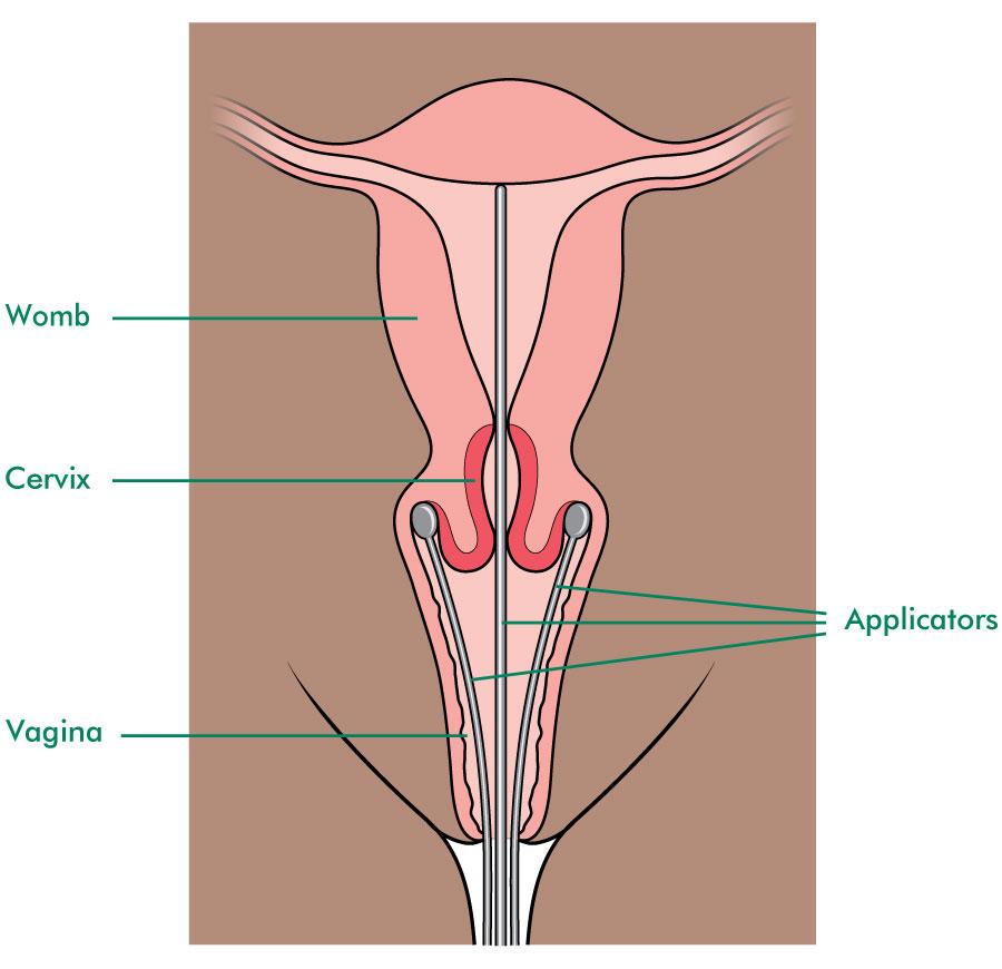 Unguent pentru tratamentul osteocondrozei mamare