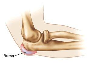 simptomele și tratamentul bursitei la încheietura mâinii
