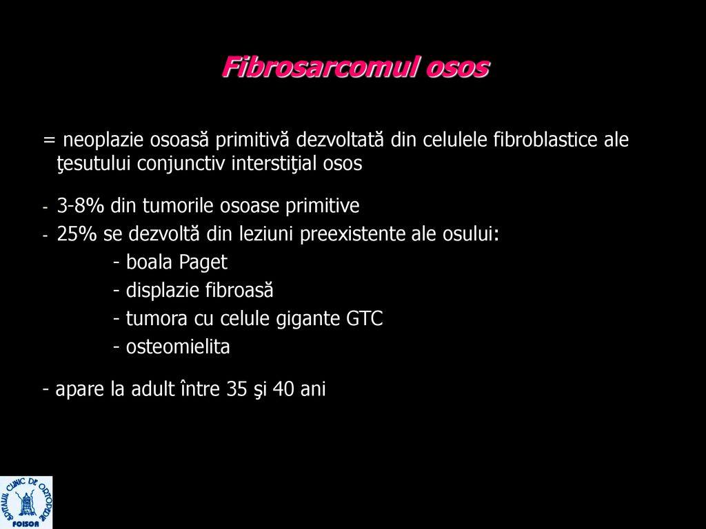 tratament diferențiat al displaziei țesutului conjunctiv