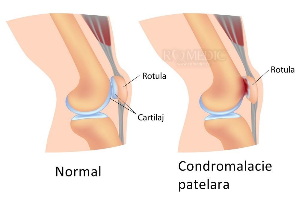 Articulațiile rănite de îngheț, Durerea de genunchi