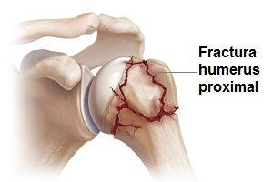 cremă articulară organică deteriorarea cartilajului articulației umărului