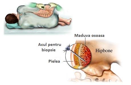 Infiltratii cu celule stem