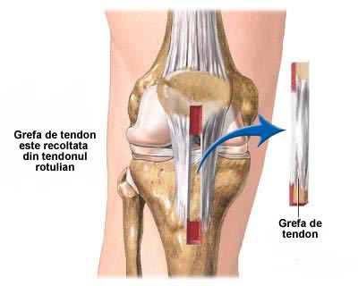 boli de ligament la genunchi și tendon