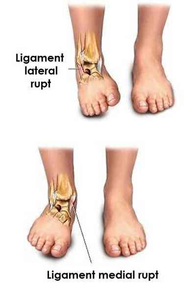 ruperea tratamentului simptomelor ligamentelor de gleznă