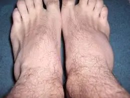 artrita degetului mare după accidentare