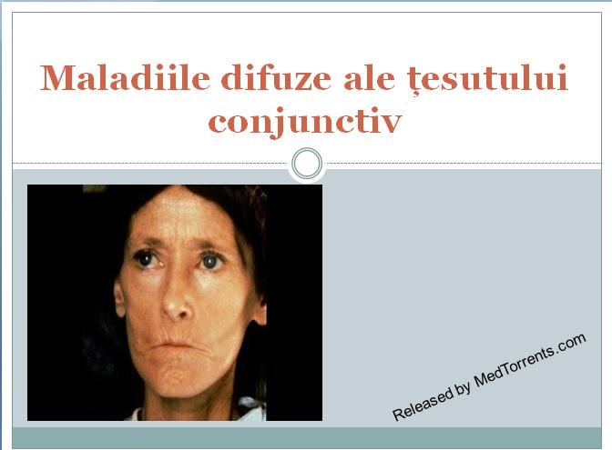 boli ale țesutului conjunctiv cu afecțiuni imune