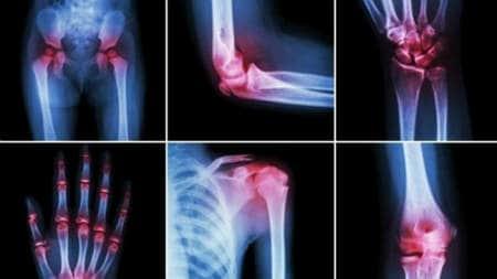 durere în articulația gleznei cu osteochondroză