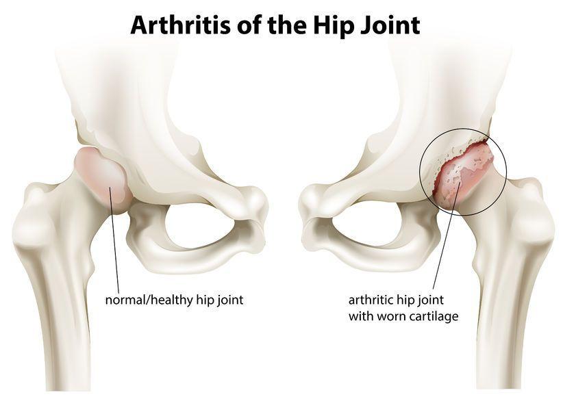 boala de coxartroză de gradul 2 artrita reumatoidă, tratamentul articulațiilor genunchiului