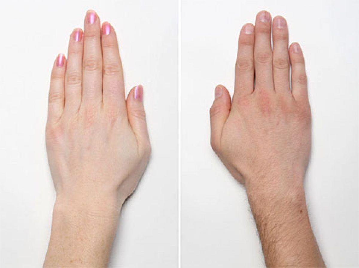 boli ale articulațiilor pe degetele de la picioare