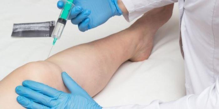noutăți în tratamentul artrozei