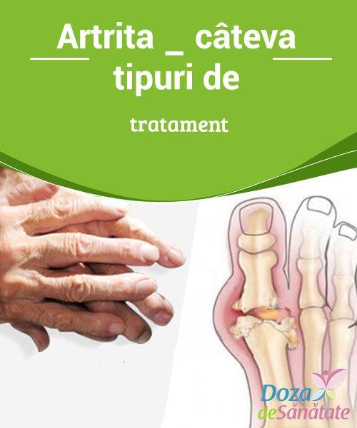 Nu am artroza genunchiului decât să tratez