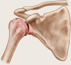 Artroza deformantă a tratamentului umărului Рубрика: Ce este artroza articulațiilor