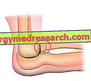 În genunchi rănit după ce alerg - championsforlife.ro - Tratați o articulație rănită