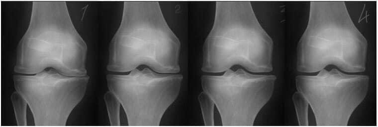 Artrită artroză