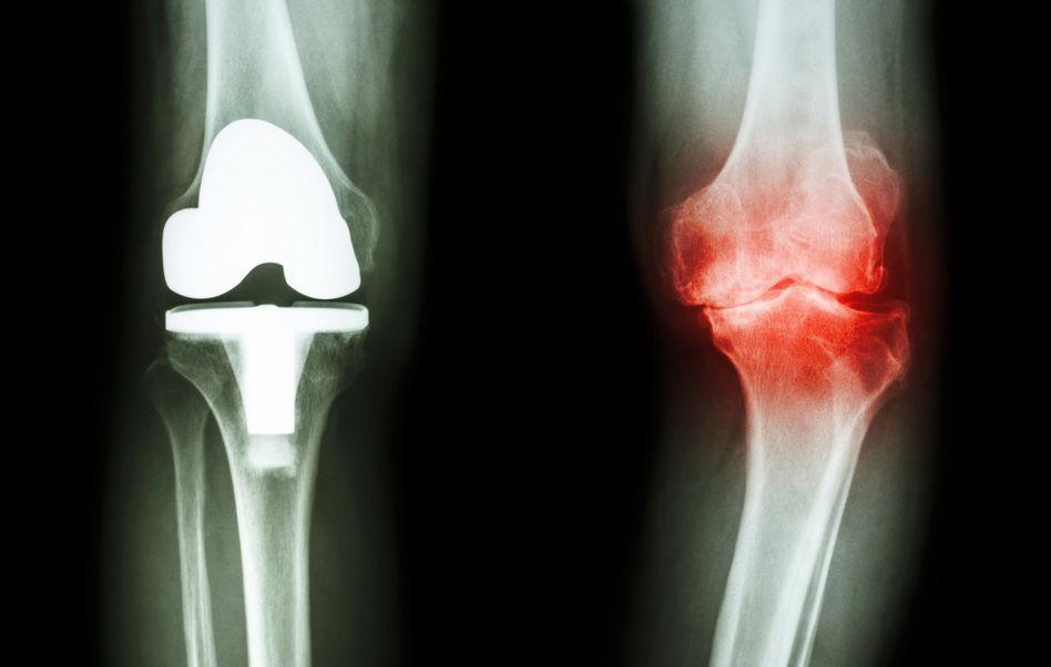 radiografia artritei genunchiului artrita reumatoidă a simptomelor și tratamentului șoldului
