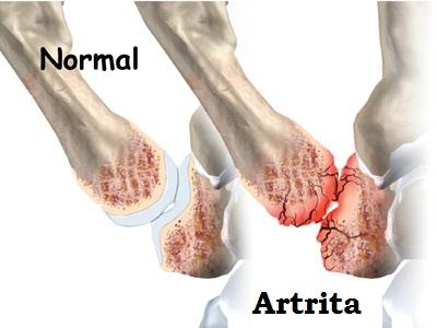 artrita in articulatia degetului