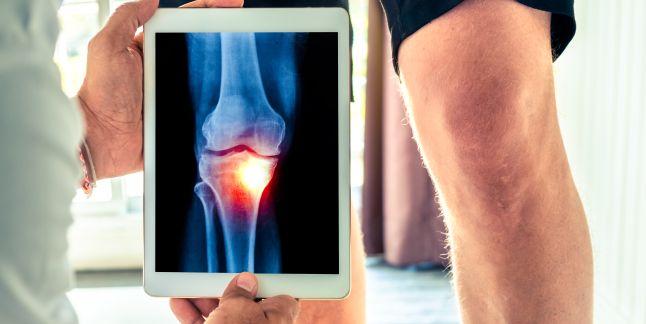 Durerile de genunchi: simptome, cauze si tratament - Ligamenteza bolii de genunchi