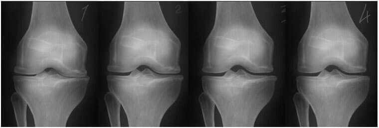 computer durere de umăr dureri articulare