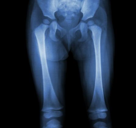 durere în articulațiile picioarelor la copii exerciții terapeutice pentru durerea articulației șoldului