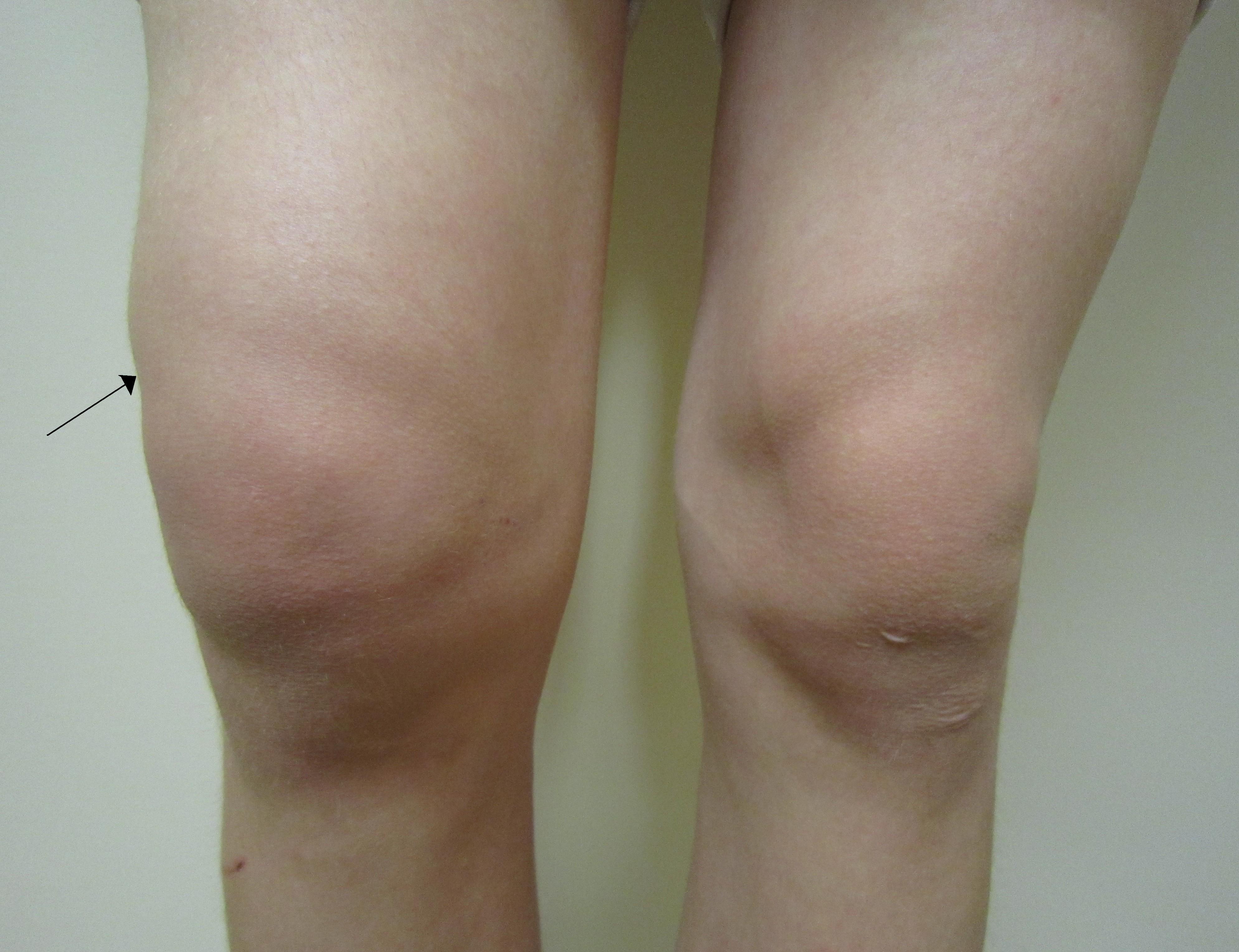 tratament suprapatelar pentru genunchi