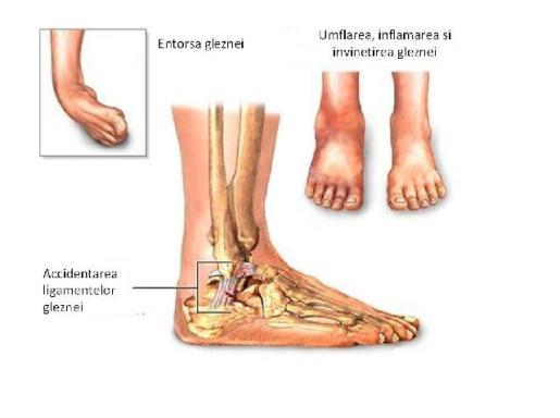 subluxarea tratamentului conservator al gleznei articulația șoldului doare simptomele