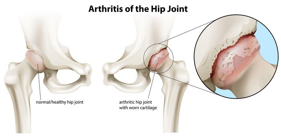 denas pentru artroza articulației șoldului