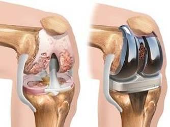 Durerile de genunchi: cauze si tratament