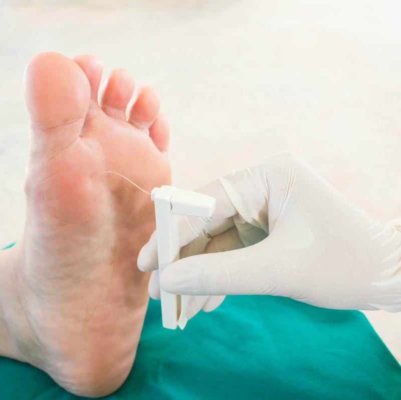 tratamentul articulațiilor diabetice dureri articulare în unguentul genunchilor