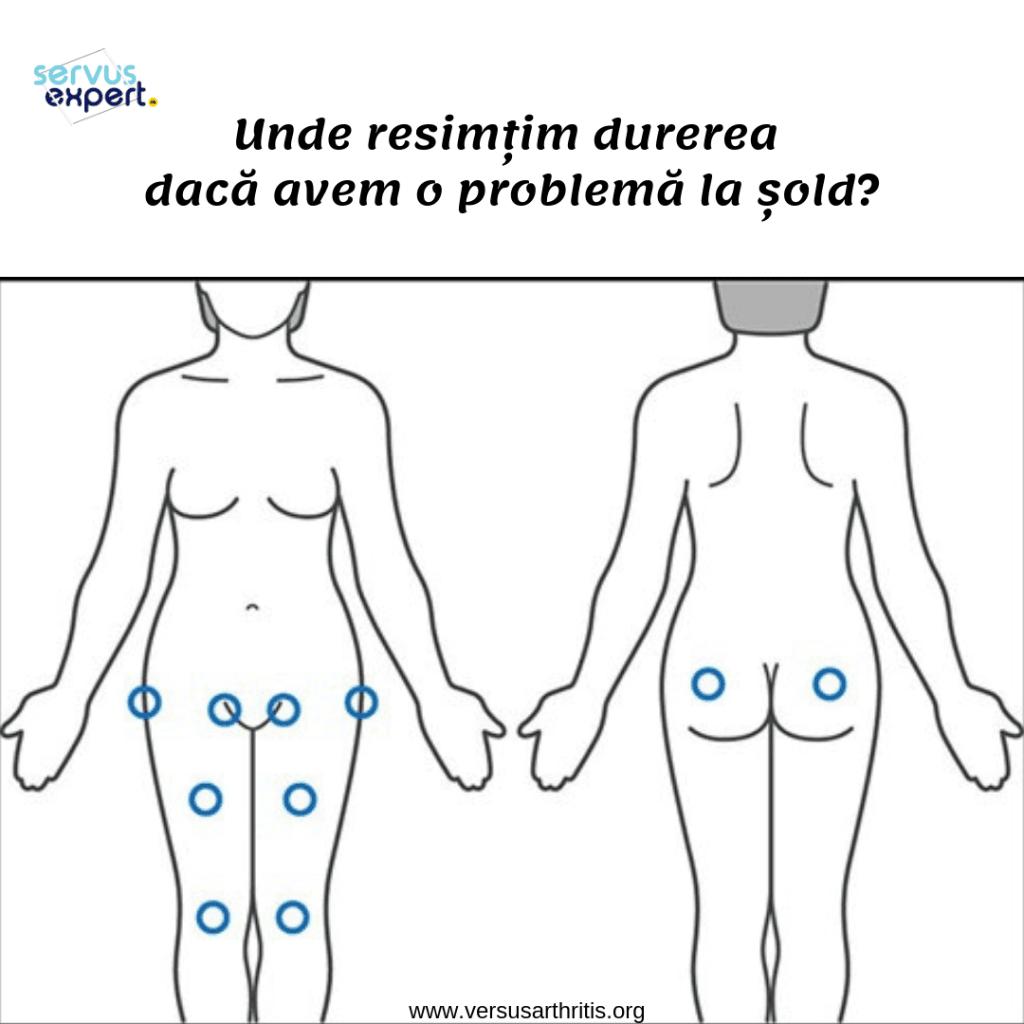 artroza este tratată într-un spital articulațiile umărului mâinilor doare ce să facă