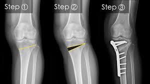 cum se tratează lichidul în articulație durere în articulația temporală stângă