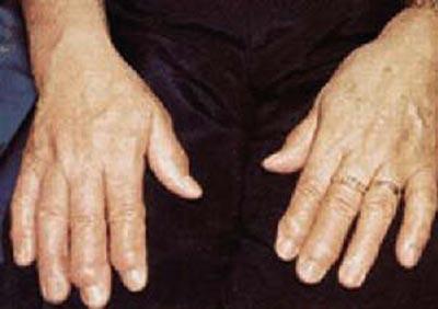 artroza articulațiilor arcului l5 s1
