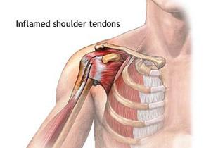 refacerea ligamentelor articulației umărului